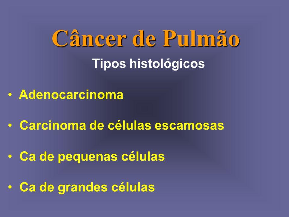 Câncer de Pulmão Tipos histológicos Adenocarcinoma