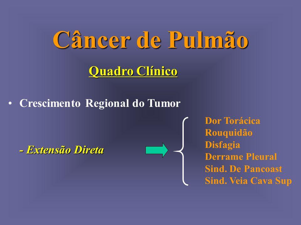 Câncer de Pulmão Quadro Clínico Crescimento Regional do Tumor