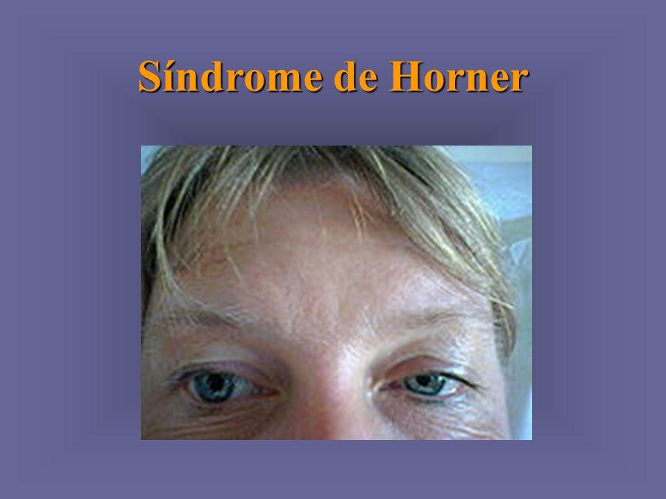 Síndrome de Horner