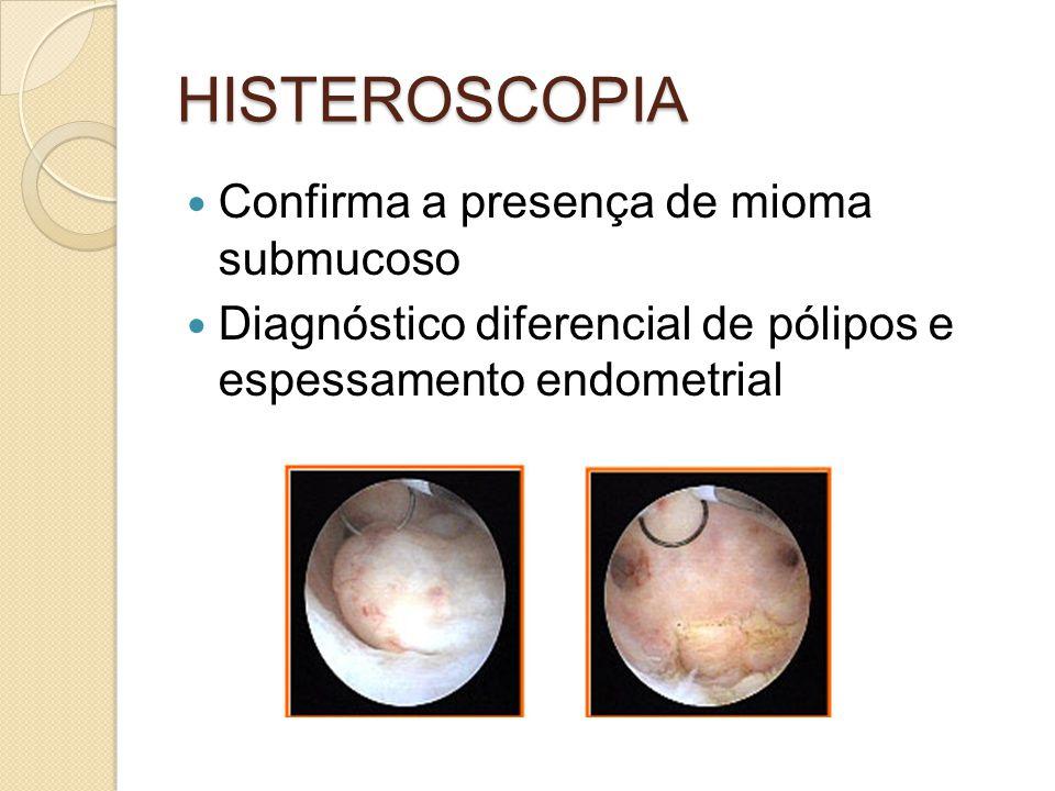 HISTEROSCOPIA Confirma a presença de mioma submucoso