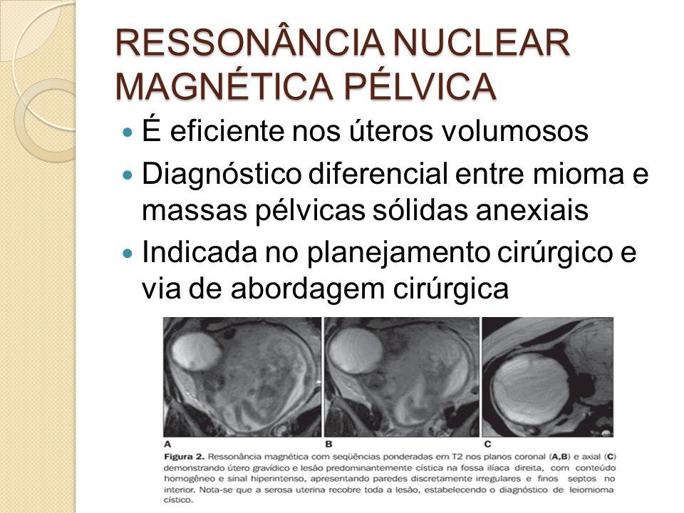 RESSONÂNCIA NUCLEAR MAGNÉTICA PÉLVICA
