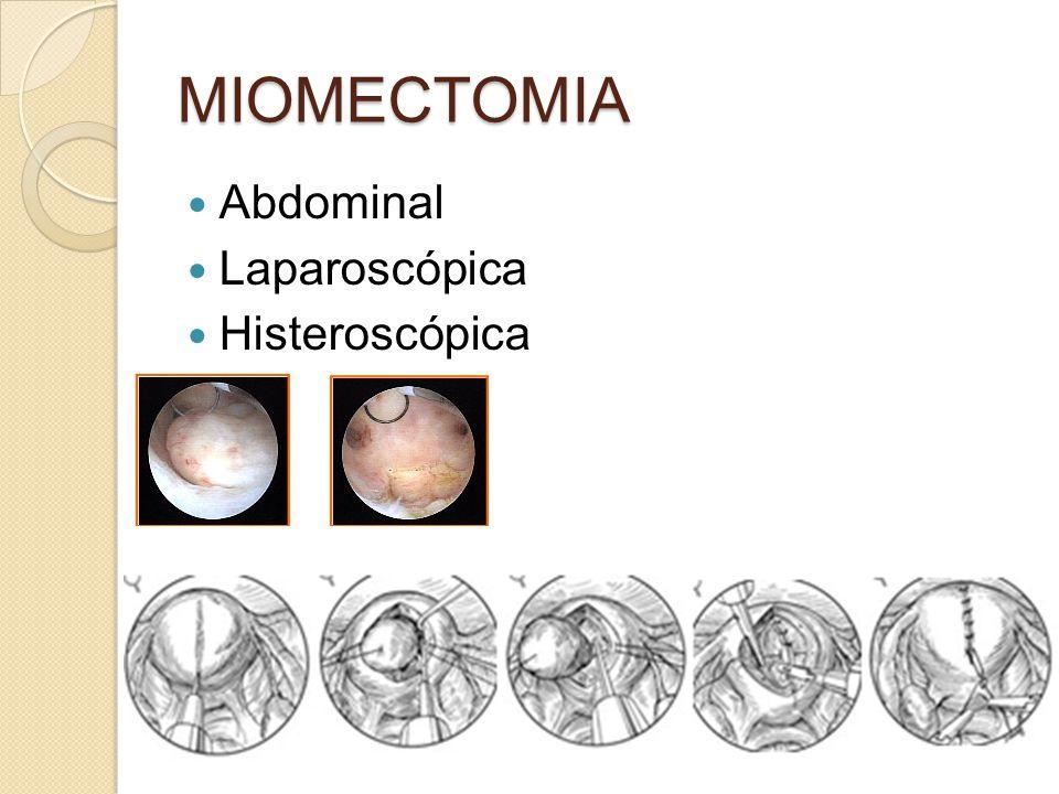 MIOMECTOMIA Abdominal Laparoscópica Histeroscópica