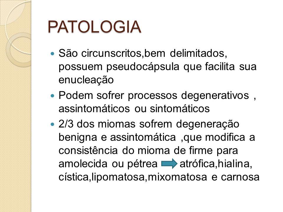 PATOLOGIA São circunscritos,bem delimitados, possuem pseudocápsula que facilita sua enucleação.