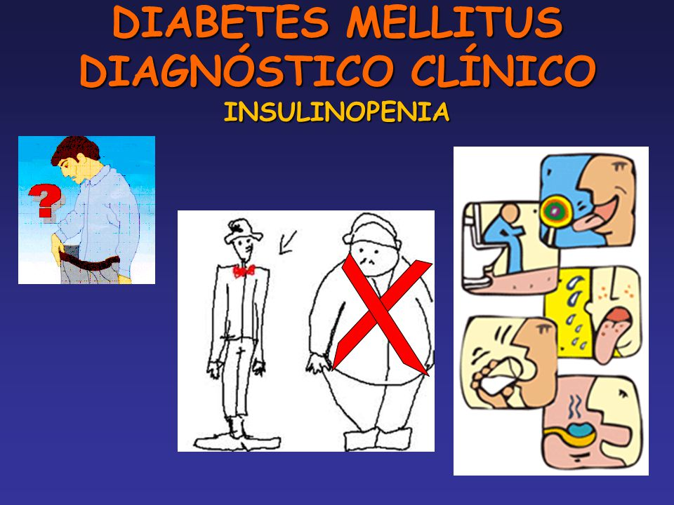 DIABETES MELLITUS DIAGNÓSTICO CLÍNICO INSULINOPENIA