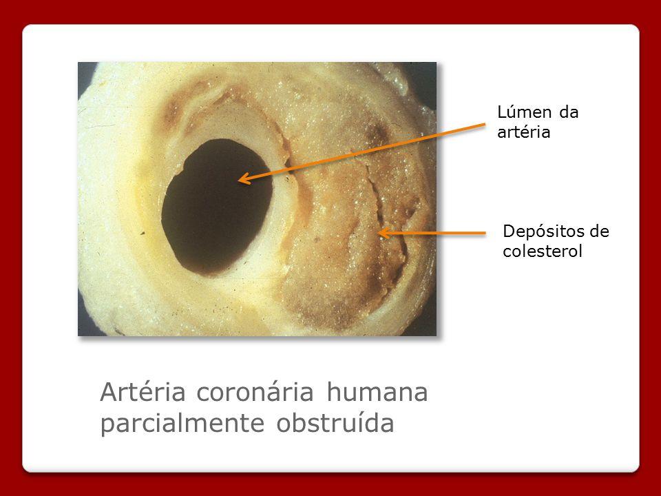 Artéria coronária humana parcialmente obstruída