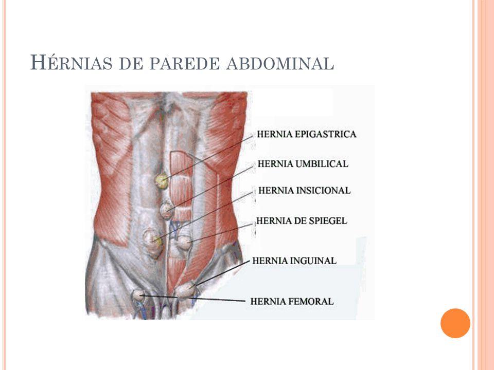 Asombroso Anatomía Y Fisiología De La Hernia Inguinal Motivo ...