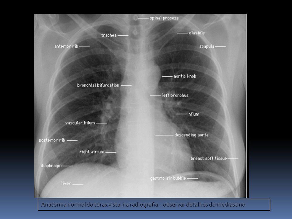 Contemporáneo Radiografía De La Rodilla Anatomía Fotos - Imágenes de ...