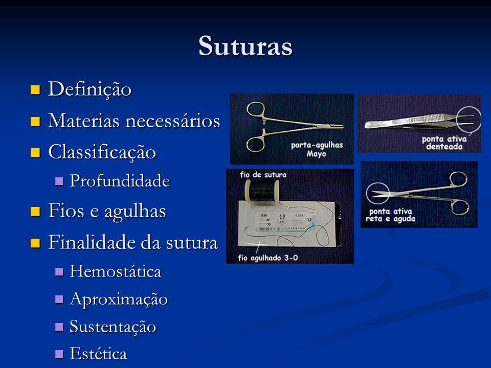 Suturas Definição Materias necessários Classificação Fios e agulhas