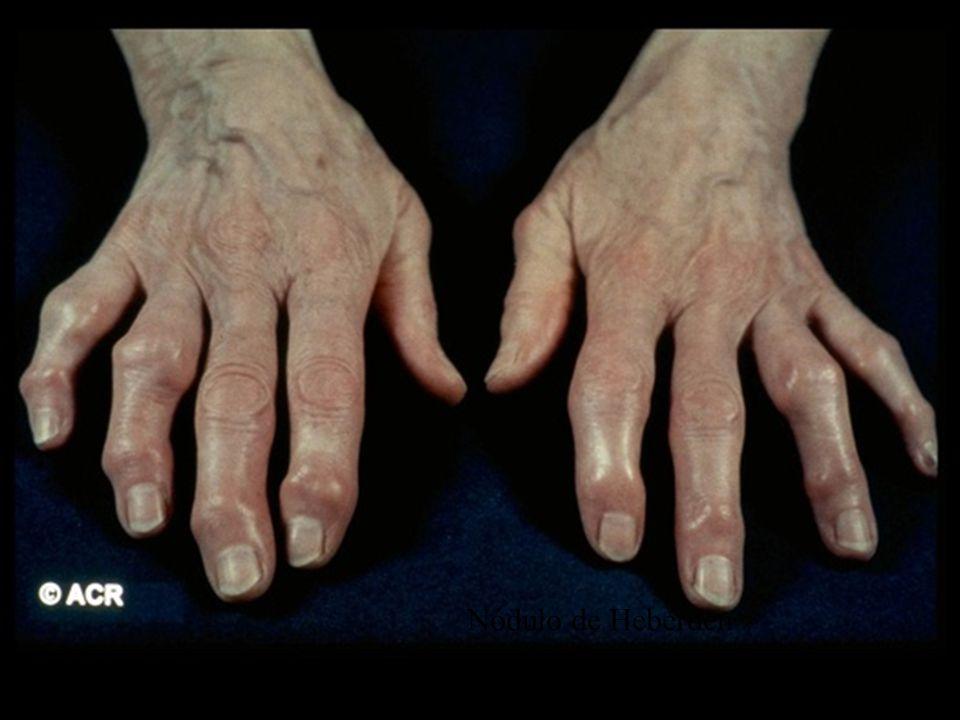 Народные средства лечения артрита пальцев рук в  947