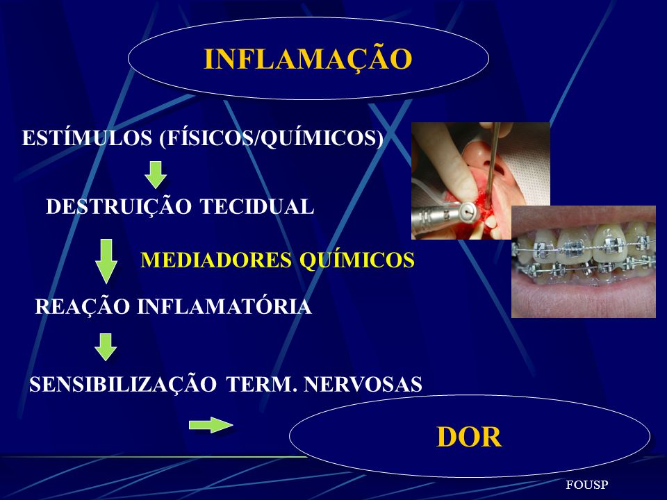 INFLAMAÇÃO DOR ESTÍMULOS (FÍSICOS/QUÍMICOS) DESTRUIÇÃO TECIDUAL