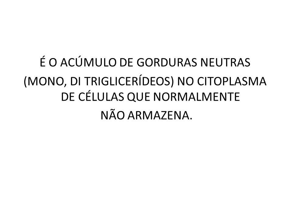 É O ACÚMULO DE GORDURAS NEUTRAS (MONO, DI TRIGLICERÍDEOS) NO CITOPLASMA DE CÉLULAS QUE NORMALMENTE NÃO ARMAZENA.