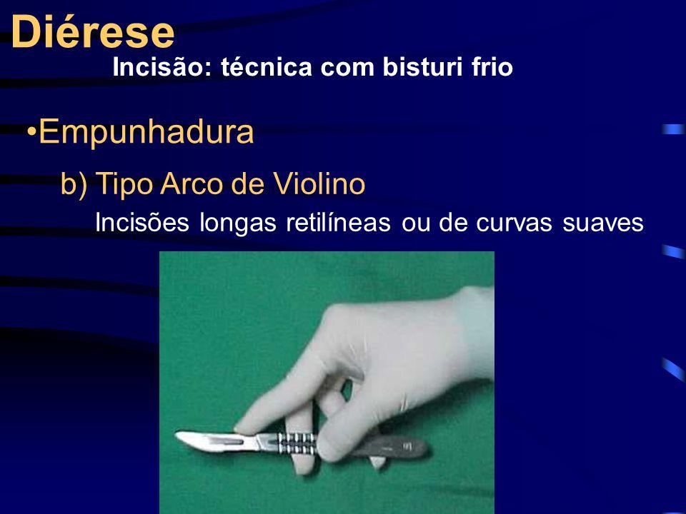 Diérese Empunhadura b) Tipo Arco de Violino