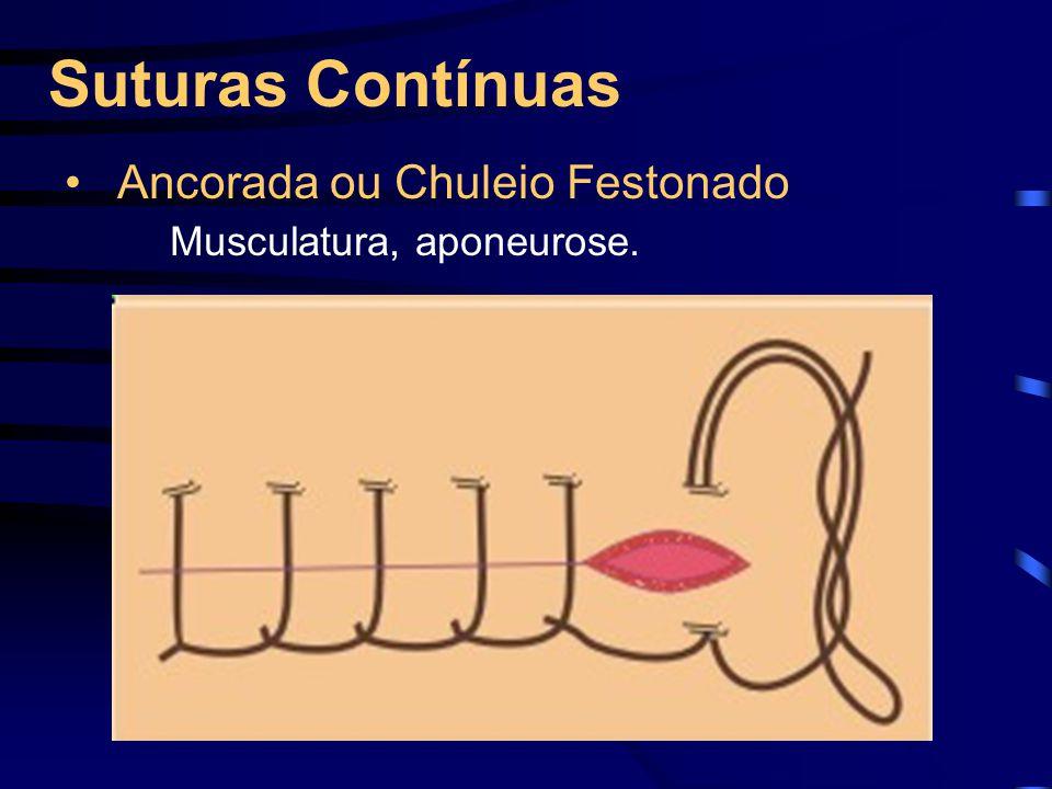 Suturas Contínuas Ancorada ou Chuleio Festonado