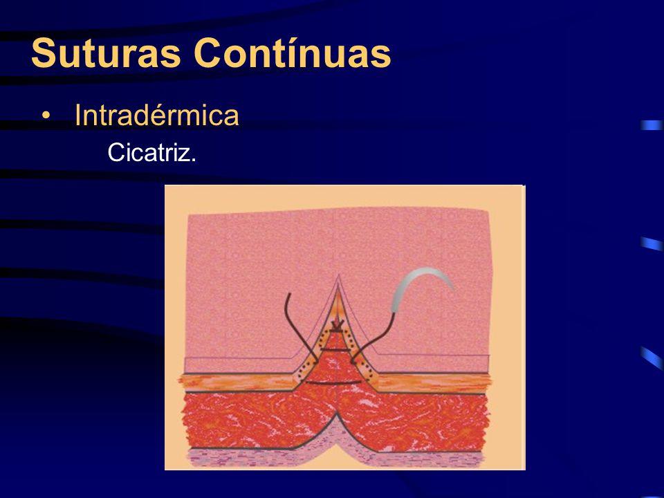 Suturas Contínuas Intradérmica Cicatriz.