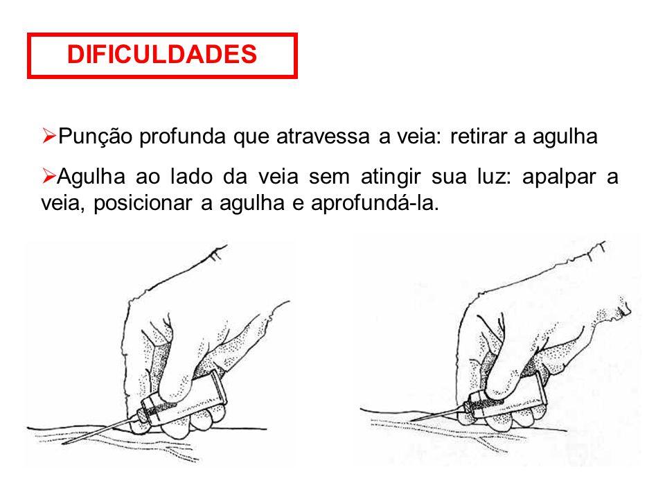 DIFICULDADES Punção profunda que atravessa a veia: retirar a agulha