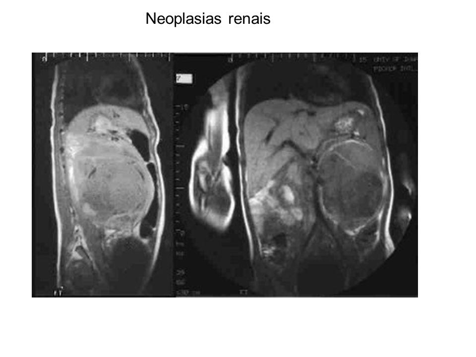 Neoplasias renais