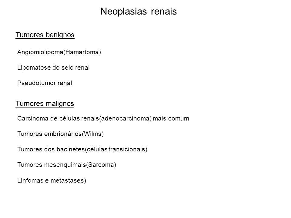 Neoplasias renais Tumores benignos Tumores malignos