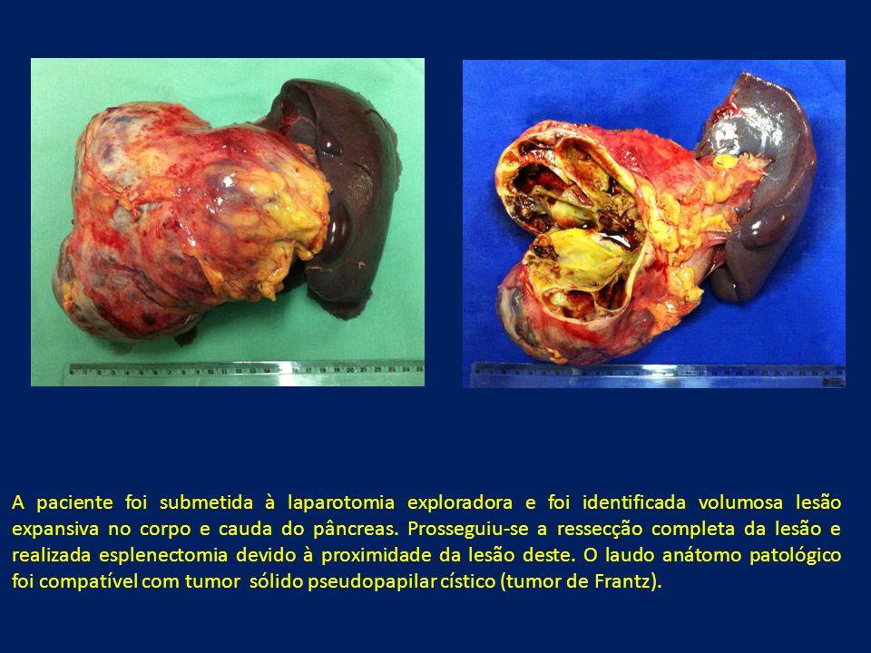 A paciente foi submetida à laparotomia exploradora e foi identificada volumosa lesão expansiva no corpo e cauda do pâncreas.