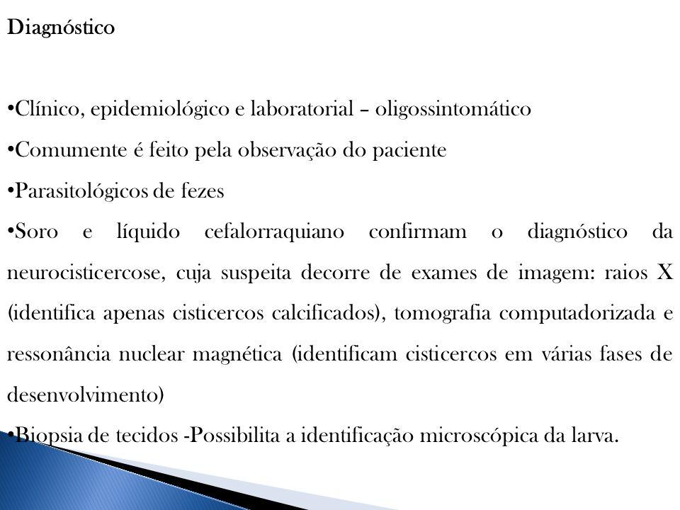Diagnóstico Clínico, epidemiológico e laboratorial – oligossintomático. Comumente é feito pela observação do paciente.