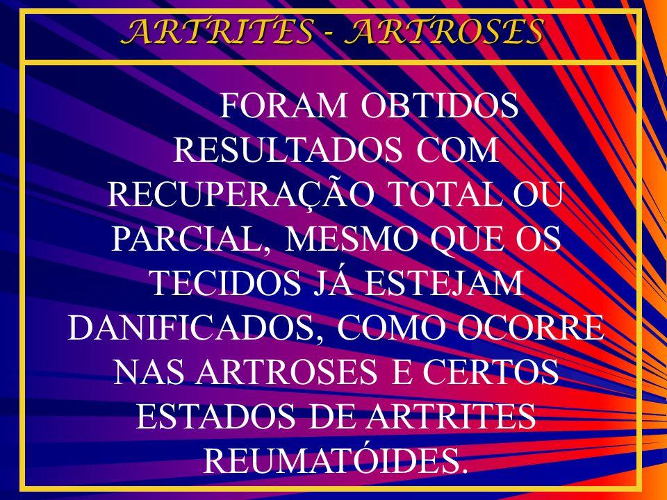 ARTRITES - ARTROSES
