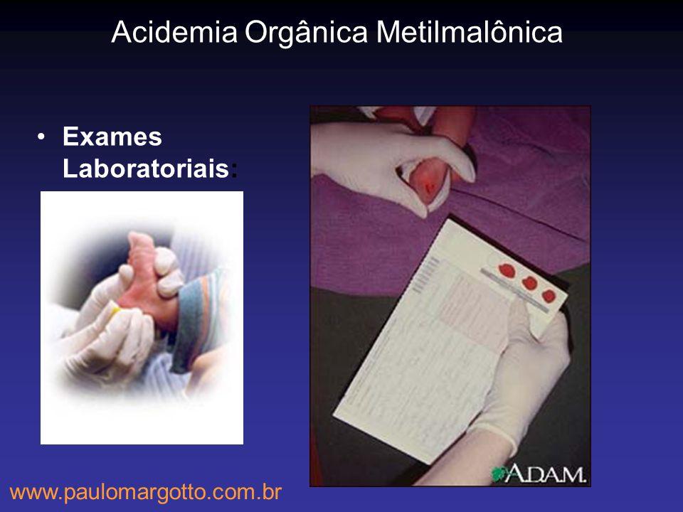 Acidemia Orgânica Metilmalônica