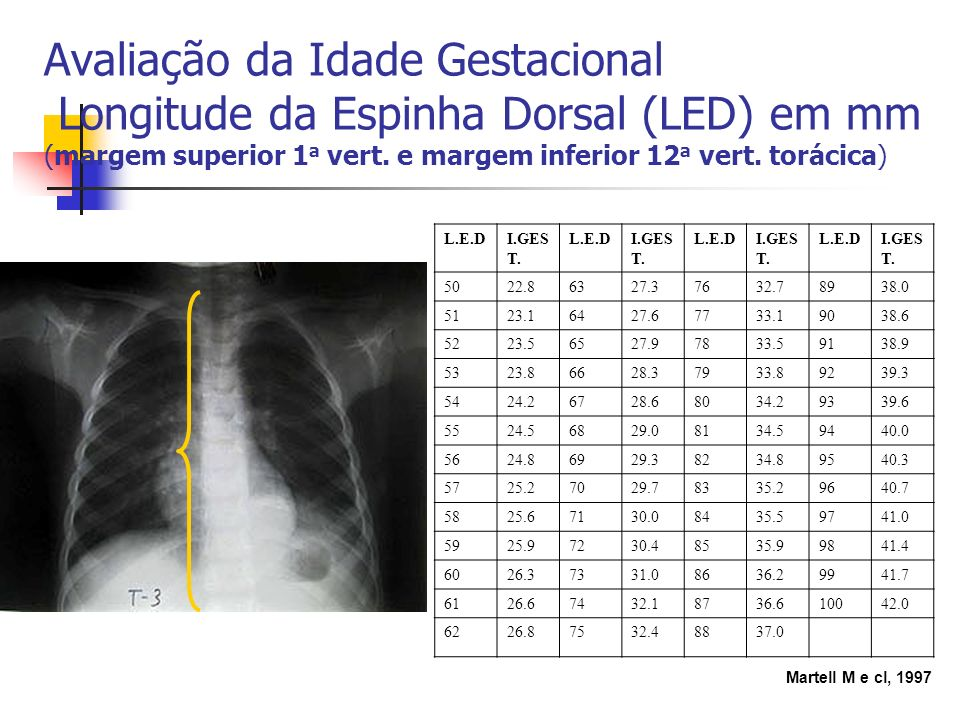 Avaliação da Idade Gestacional Longitude da Espinha Dorsal (LED) em mm (margem superior 1a vert. e margem inferior 12a vert. torácica)