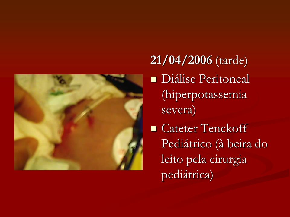 21/04/2006 (tarde) Diálise Peritoneal (hiperpotassemia severa) Cateter Tenckoff Pediátrico (à beira do leito pela cirurgia pediátrica)