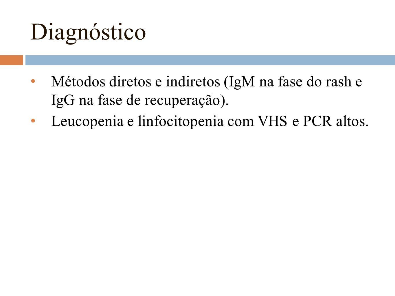 Diagnóstico Métodos diretos e indiretos (IgM na fase do rash e IgG na fase de recuperação).