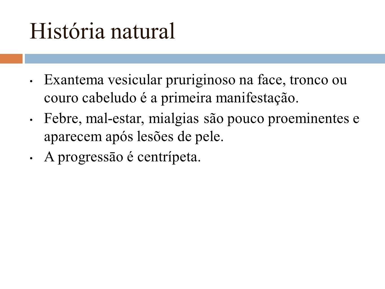 História natural Exantema vesicular pruriginoso na face, tronco ou couro cabeludo é a primeira manifestação.