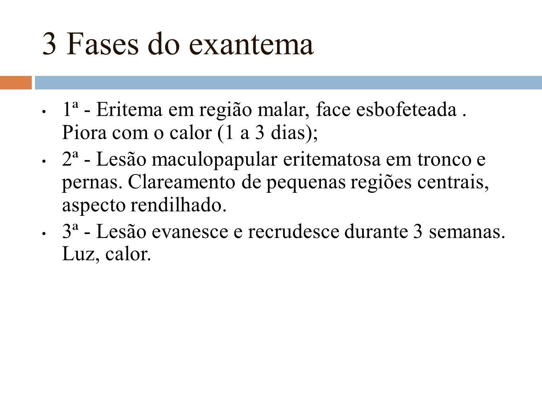 3 Fases do exantema 1ª - Eritema em região malar, face esbofeteada . Piora com o calor (1 a 3 dias);