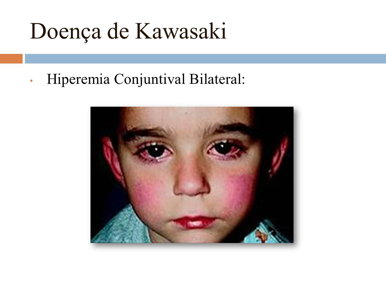 Doença de Kawasaki Hiperemia Conjuntival Bilateral: