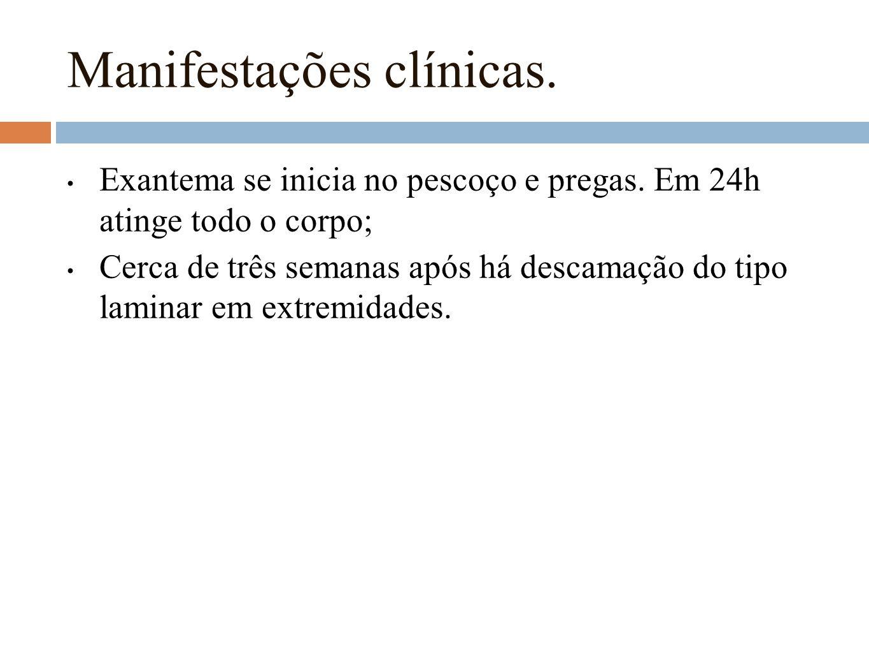 Manifestações clínicas.