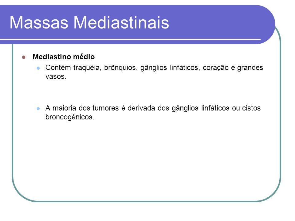 Massas Mediastinais Mediastino médio