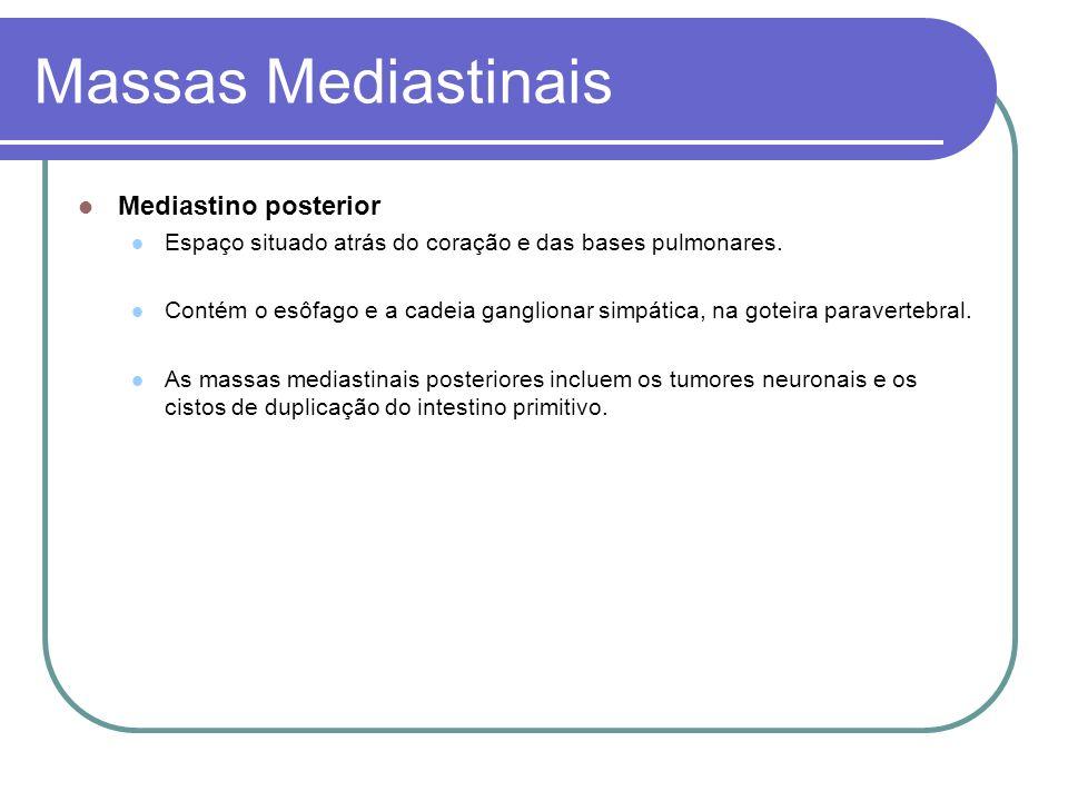 Massas Mediastinais Mediastino posterior