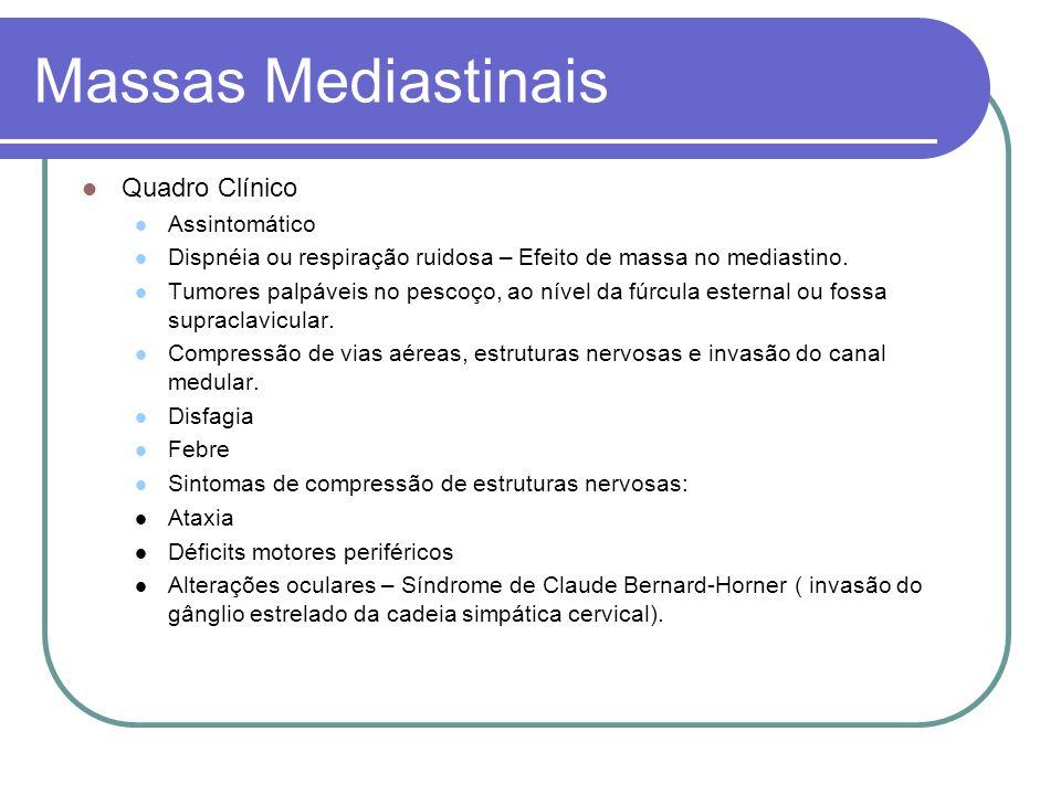Massas Mediastinais Quadro Clínico Assintomático