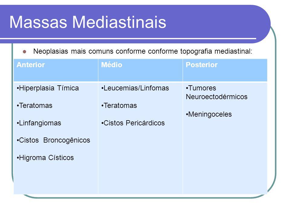 Massas MediastinaisNeoplasias mais comuns conforme conforme topografia mediastinal: Anterior. Médio.