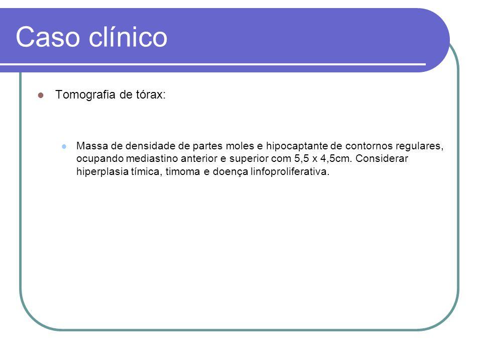 Caso clínico Tomografia de tórax: