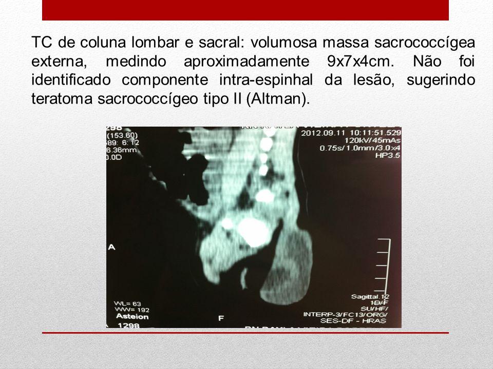 TC de coluna lombar e sacral: volumosa massa sacrococcígea externa, medindo aproximadamente 9x7x4cm.