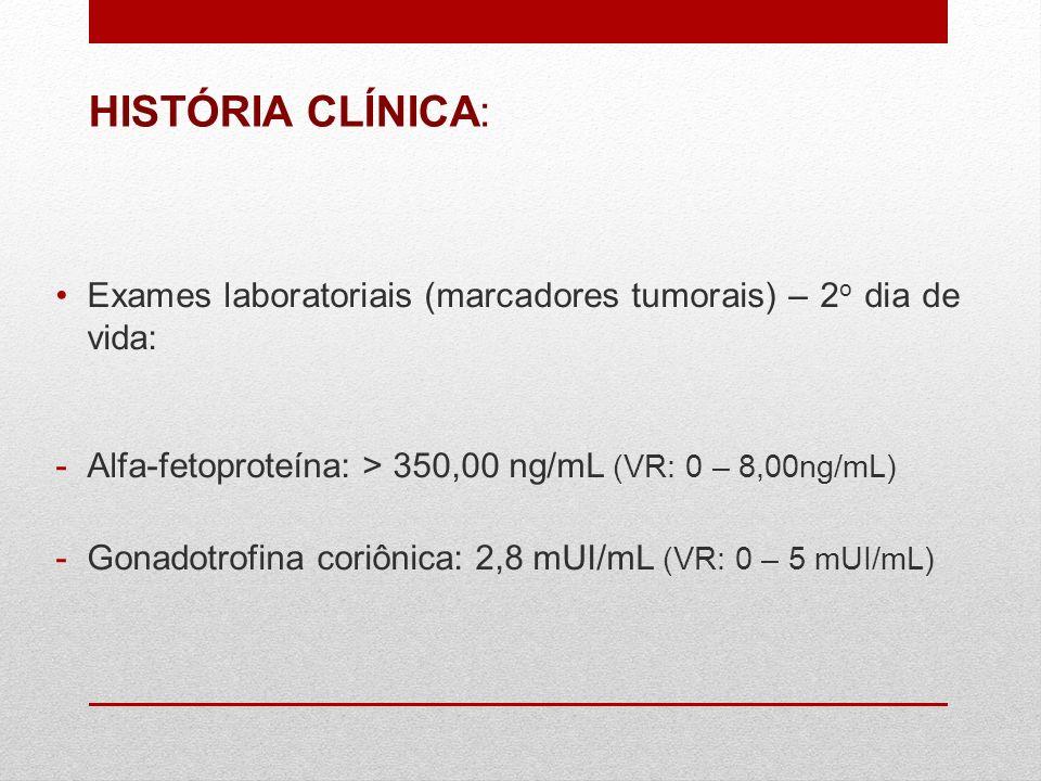 HISTÓRIA CLÍNICA: Exames laboratoriais (marcadores tumorais) – 2o dia de vida: Alfa-fetoproteína: > 350,00 ng/mL (VR: 0 – 8,00ng/mL)