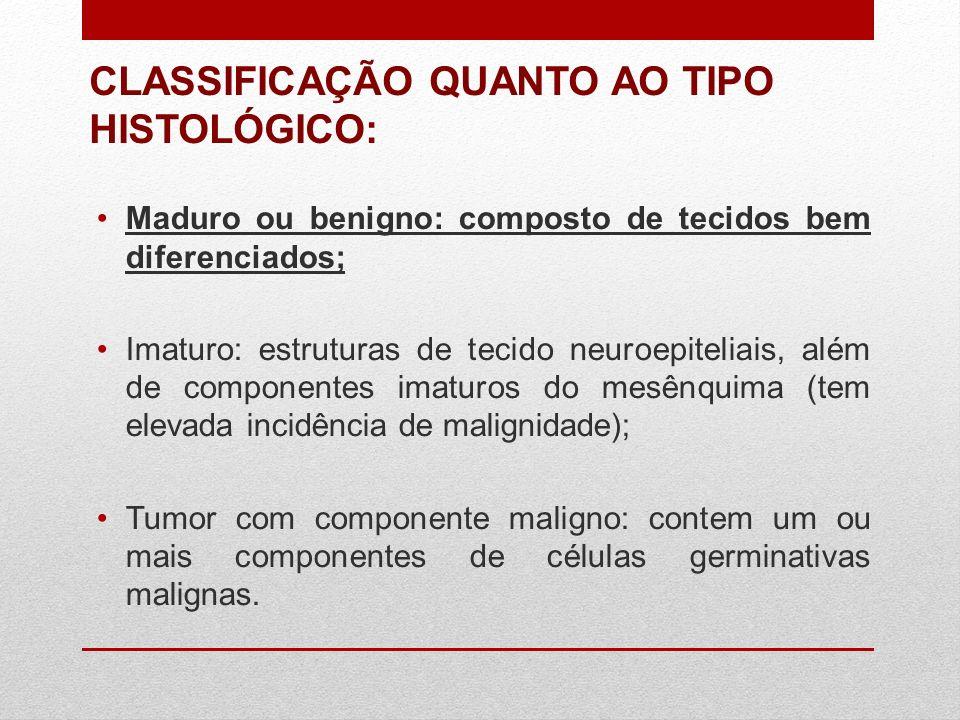 CLASSIFICAÇÃO QUANTO AO TIPO HISTOLÓGICO:
