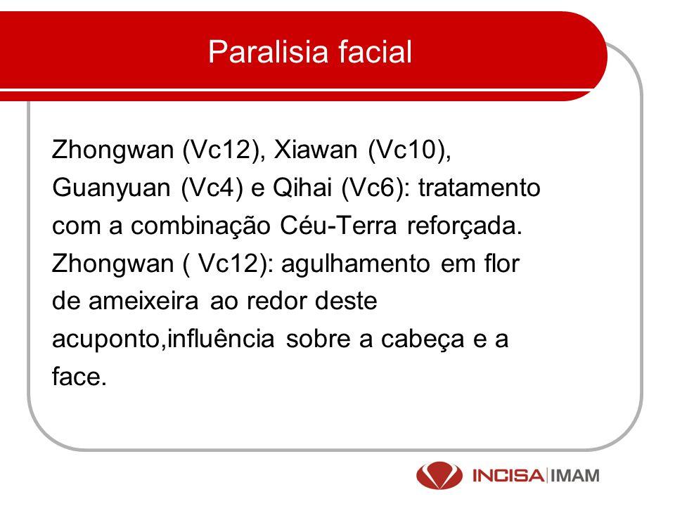 Paralisia facial Zhongwan (Vc12), Xiawan (Vc10),