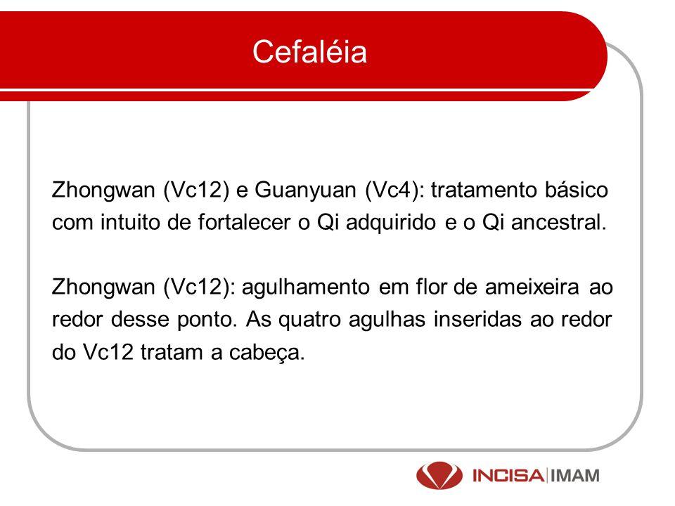 Cefaléia Zhongwan (Vc12) e Guanyuan (Vc4): tratamento básico
