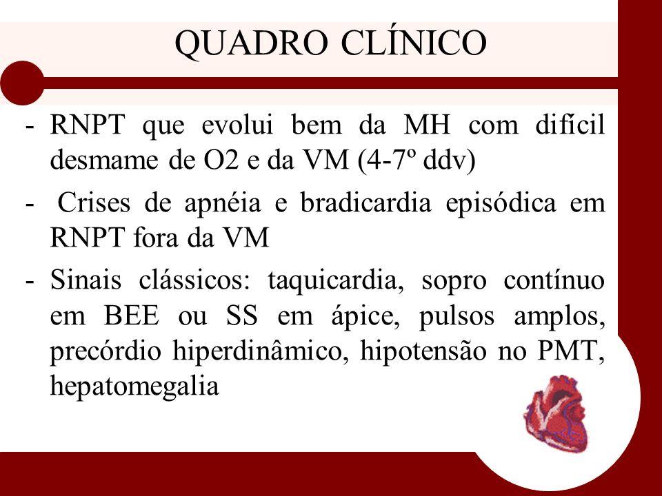QUADRO CLÍNICO RNPT que evolui bem da MH com difícil desmame de O2 e da VM (4-7º ddv) Crises de apnéia e bradicardia episódica em RNPT fora da VM.