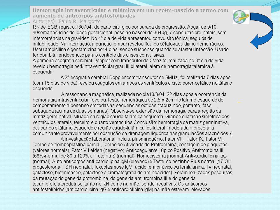 Hemorragia intraventricular e talâmica em um recém-nascido a termo com aumento de anticorpos antifosfolípides Autor(es): Paulo R. Margotto