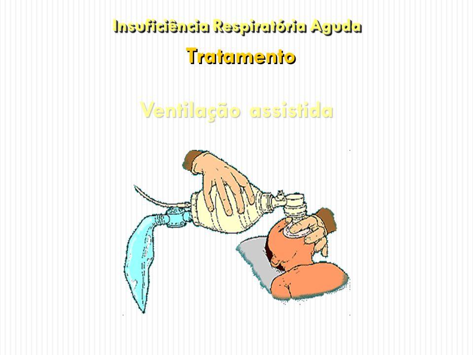 Insuficiência Respiratória Aguda Tratamento