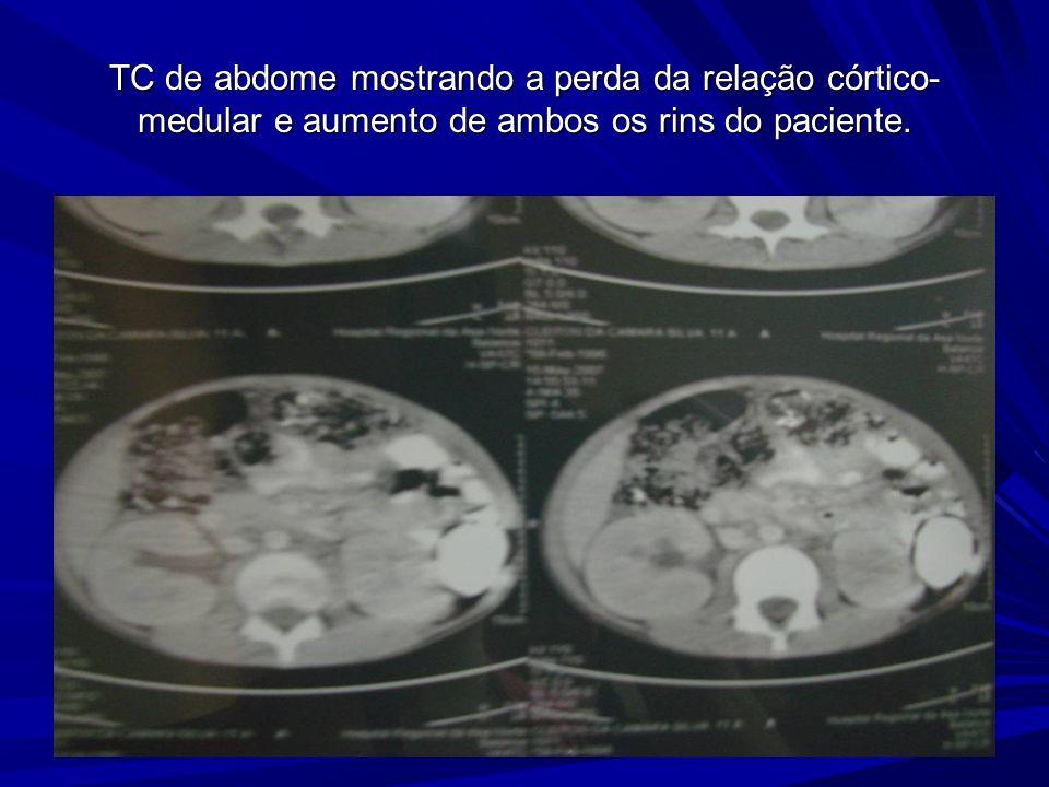 TC de abdome mostrando a perda da relação córtico-medular e aumento de ambos os rins do paciente.