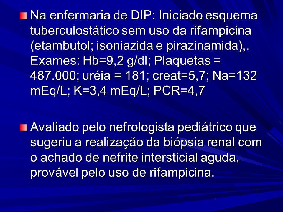 Na enfermaria de DIP: Iniciado esquema tuberculostático sem uso da rifampicina (etambutol; isoniazida e pirazinamida),. Exames: Hb=9,2 g/dl; Plaquetas = 487.000; uréia = 181; creat=5,7; Na=132 mEq/L; K=3,4 mEq/L; PCR=4,7