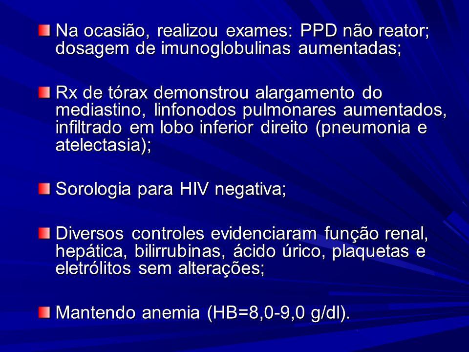 Na ocasião, realizou exames: PPD não reator; dosagem de imunoglobulinas aumentadas;