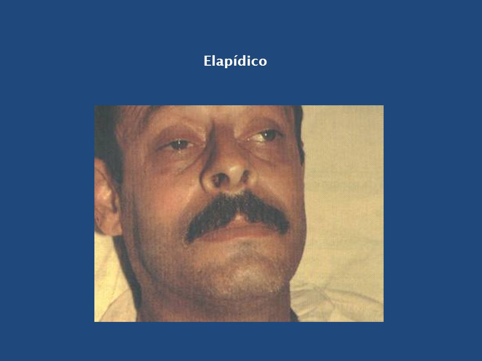 Elapídico