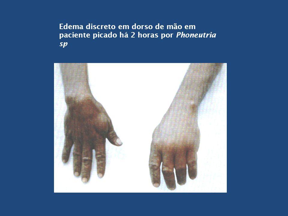 Edema discreto em dorso de mão em paciente picado há 2 horas por Phoneutria sp